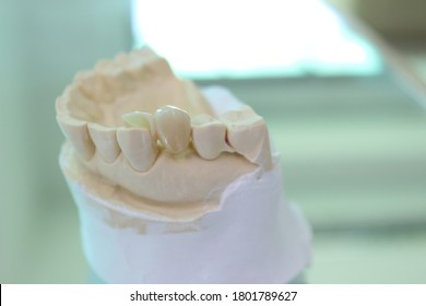 Zirconia crown with cantilever wing for dental treatment