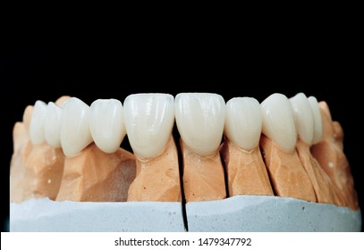 Zirconium crowns. Ceramic teeth with the implant on a plaster model isolated on a black background. Ceramic bridge on plaster model