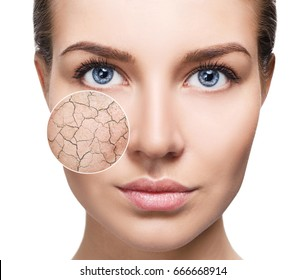 Zoom circle shows facial skin before moistening.