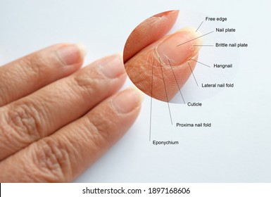 Zoomin image of Finger nail anatomy from real finger with brittle nail, fold cuticle and lateral nail fold problems isolated on white background