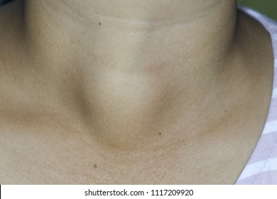 Zooming closeup frontal or anterior view of painless movable enlarged thyroid gland on right side of young woman patient 's neck and the diagnosis is benign thyroid goiter