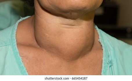 Zooming closeup frontal view of enlarged multinodular thyroid goitre in a young or middy-aged Asian woman comes with history of chronic difficult swallowing and breathing