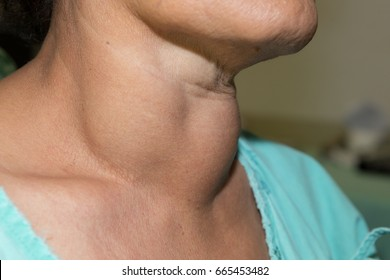 Zooming closeup lateral view of enlarged multinodular thyroid goiter in a middle-aged Asian female comes with history of chronic slow progressive neck lump