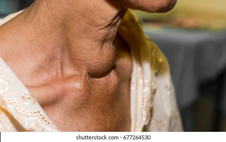 Zooming closeup lateral view of enlarged thyroid glands on neck of an elderly Asian woman comes with history of long duration slow progressive neck lump and difficulty in swallowing