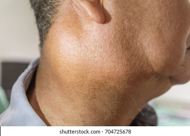 Zooming closeup lateral view of enlarged lymph nodes and submandibular gland on right side of neck in a middle aged Asian male comes with history of chronic slow progressive neck lump and pain.