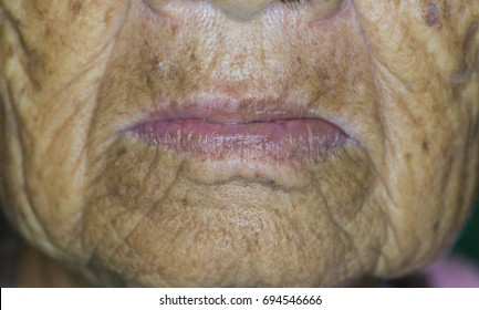 Zooming closeup lower facial view of aging disease called ' Scleroderma ' which describes tight skin around elderly's lips founded in an old Asian female comes with history of swallowing difficulty
