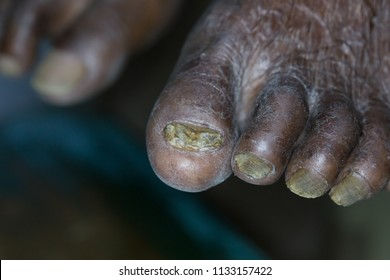 Zooming closeup macro view of dry itchy painless scratching scaly bare foot in an elderly Asian male patient and the diagnosis is chronic fungal infection on his nails