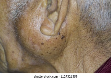 Zooming closeup macro view of extremely enlarged parotid gland on left cheek of an elderly male Asian patient comes with history of chronic slow progressive neck lump