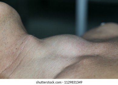 Zooming closeup macro view of extremely enlarged thyroid gland on neck of a patient laying down on operating theater prior to thyroid surgery