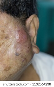 Zooming closeup macro view of extremely enlarged parotid gland on left cheek of an elderly woman patient comes with history of chronic slow progressive neck lump and the diagnosis is parotid cancer