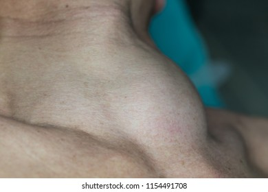 Zooming closeup macro view of extremely enlarged thyroid gland in a middle aged Asian female patient comes with history of chronic slow progressive neck lump on operating theater