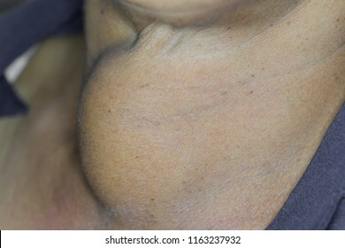 Zooming closeup macro view of extremely enlarged thyroid gland in a young Asian male patient comes with history of chronic slow progressive neck lump and the diagnosis is normal thyroid goiter