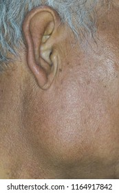 Zooming closeup macro view of extremely enlarged parotid gland on right cheek of a patient comes with history of chronic slow progressive neck lump