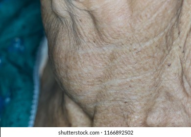 Zooming closeup macro view of extremely enlarged thyroid gland in a patient comes with history of chronic slow progressive neck lump and the diagnosis is thyroid goiter