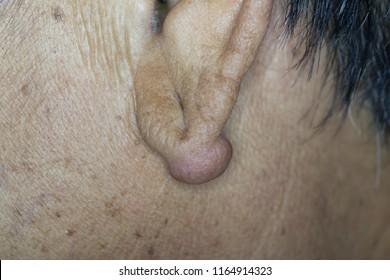 Zooming closeup macro view of large keloid or hypertrophic scar on ear lobule