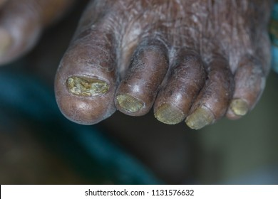 Zooming closeup macro view of left foot of an elderly poor hygiene Asian male patient showing chronic fungal infection invading his nails and dry scaly skin in a dermatology clinic