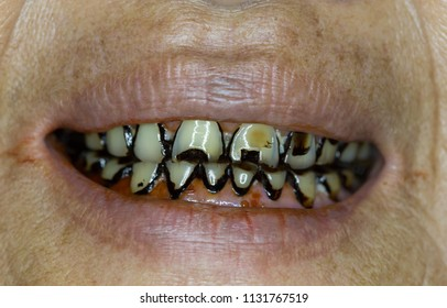 Zooming closeup macro view of multiple dental caries, numerous black thick tartar on all visible teeth of a patient comes with foul smelly mouth in a dental clinic