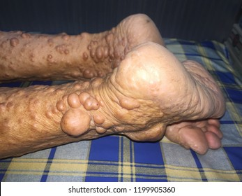 Zooming closeup macro view of multiple painless large scattering lumps on lower legs of an elderly Asian female patient and the diagnosis is neurofibromatosis