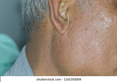 Zooming closeup macro view of painless extremely enlarged parotid gland on right cheek of elderly Asian patient comes with history of chronic slow progressive neck lump
