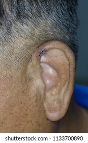 Zooming closeup macro view of suturing ear after surgery to approximate superficial skin due to injury
