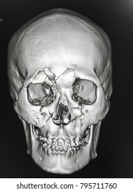 Zooming closeup reconstruction CT head & neck region showing comminuted fracture at frontal sinus , zygomatic arch , maxillary and orbital bone in a young Asian female patient with traffic  accident