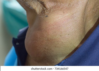 Zooming closeup view of enlarged thyroid goiter found in a middle aged Asian male comes with history of chronic slow progressive neck lump , swallowing difficulty and upper airway obstruction