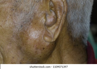 Zooming closeup view of extremely enlarged parotid gland on left side of old male Asian patient 's cheek and the diagnosis is benign parotid gland hypertrophy