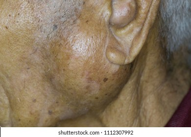 Zooming closeup view of extremely enlarged parotid gland on left cheek of an old male Asian patient comes with history of chronic slow progressive neck lump