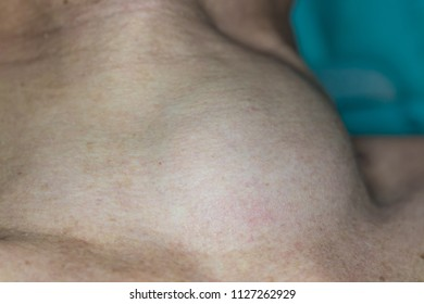 Zooming closeup view of extremely enlarged thyroid gland on neck of a middle aged Asian female patient laying down on operating theater prior to thyroid surgery