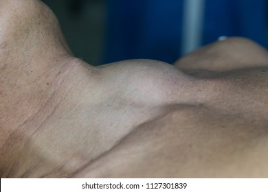 Zooming closeup view of extremely enlarged thyroid gland in a layed down patient on operating theater prior to thyroid surgery