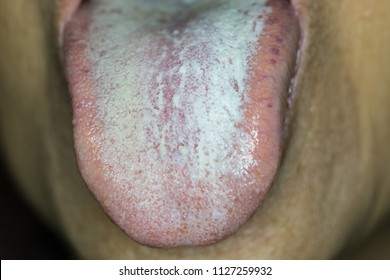 Zooming closeup view of general whitish plaque on dorsal site of tongue in a young Asian female patient comes with history of tongue numbness