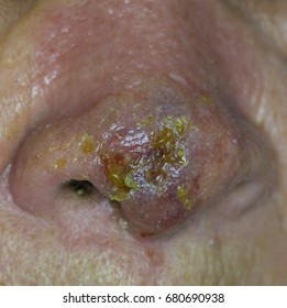 Zooming closeup view of inflamed nose with bleb and scratching scaly lesion and the diagnosis in medical term is cellulitis at nasal tip