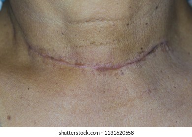 Zooming closeup view of old surgical scar after a thyroid surgery on patient 's neck