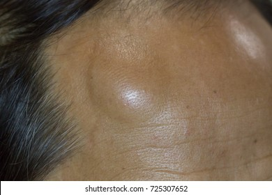 Zooming closeup view if rounded painless lump at forehead