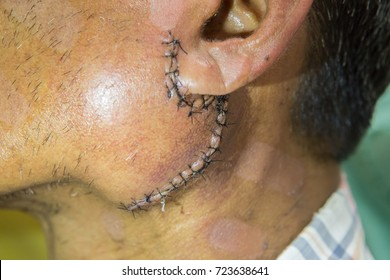 Zooming close-up view of sutured would after surgery of salivary gland on left cheek just below auricle