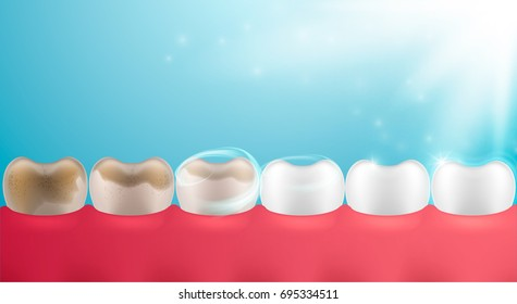 3d Tooth set, whitening design, realistic dental illustration. Teeth collection, vector template for dent surgery, clean, care, stomatology,...  Clean and dirty tooth, clearing process.