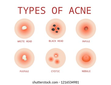6 Types of Acne, Vector
