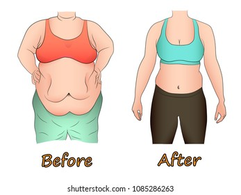 Abdominal fat of a woman before and after dieting, sport or surgery