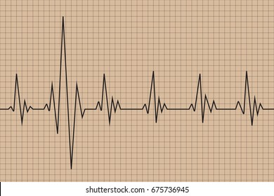 Abnormal cardiogram with grid on brown background., vector illustration
