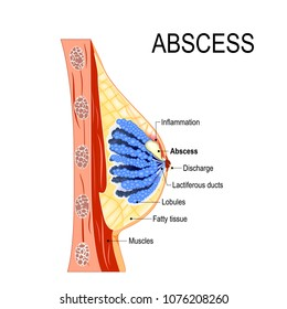 abscess. Cross-section of the mammary gland with inflammation of the breast (abscess formation). Women's Health. Human anatomy. Vector diagram for medical use