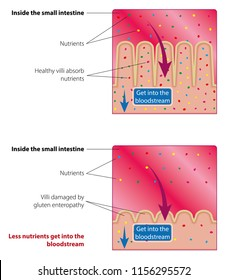 Absorption of nutrients in the small intestine. Healthy and damaged villi. Medical vector illustration