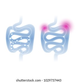 Abstract medical vector illustration of healthy and sick intestine in a light blue color
