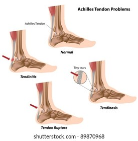 Achilles (calcaneal) tendon problems causing foot pain