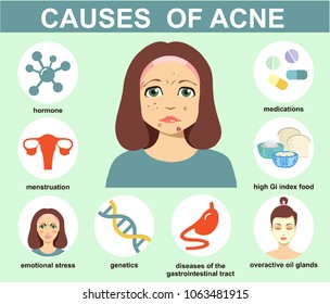 Acne causes. Skin problems and diseases beauty infographics. Vector illustration. Dermatology, skin care infographic