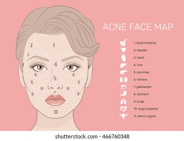 Acne Face Map. Vector illustration of beauty woman face. Viscera location map on the face. What your skin is telling you. Skin Mapping. The internal organs of the human icons set.