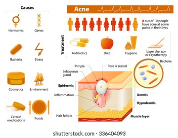 Acne. health problems. medicine in medical infographics. elements and icons for design. Skin layers