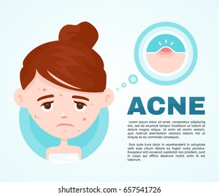 Acne infographic. Vector modern flat style cartoon character illustration. Isolated on blue background. Unhappy teen girl struggling with acne,pimples. Skin face problem concept