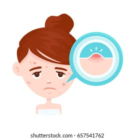 Acne infographic. Vector modern flat style cartoon character illustration. Isolated on white   background. Unhappy teen beauty girl struggling with acne,pimples. Skin face people problem concept