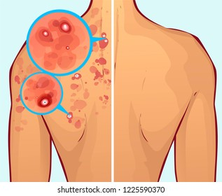 Acne on the body, before-after. Vector illustration
