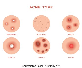 Acne and Pimples, stages of development, graphic vector